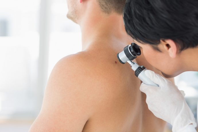 Skin Cancer: Doctor examining mole on back of man